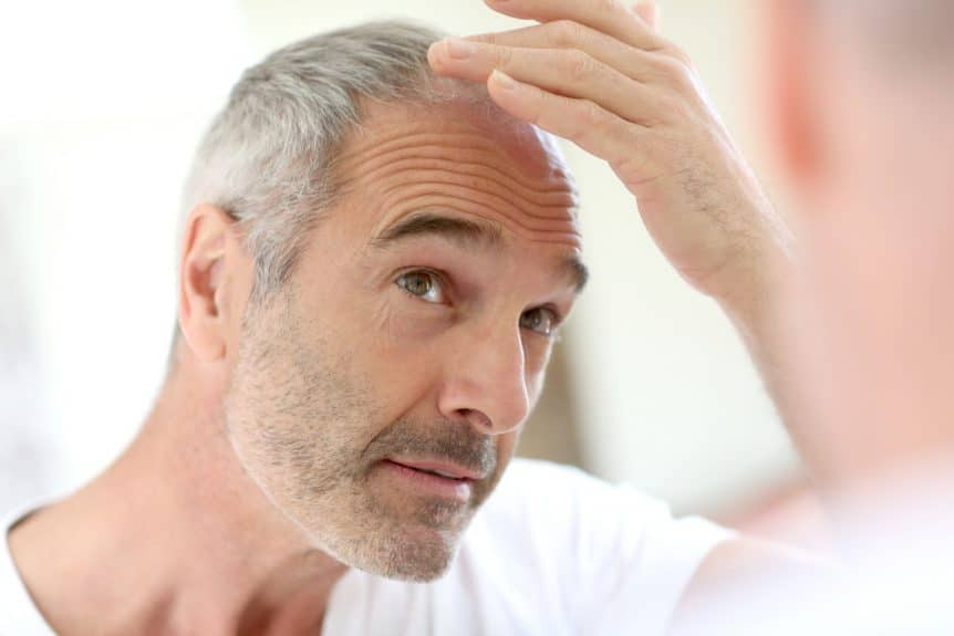 Links Between ED and Hair Loss
