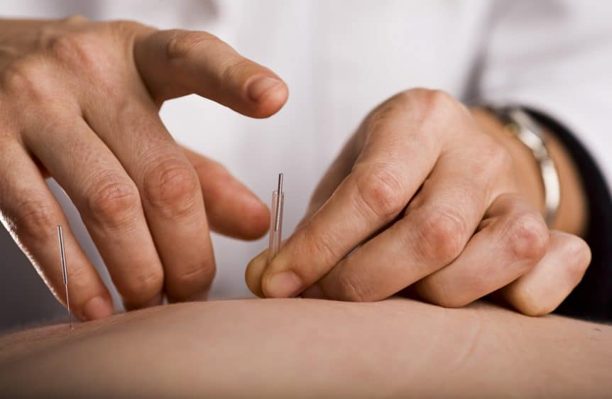 Benefits of Acupuncture for ED