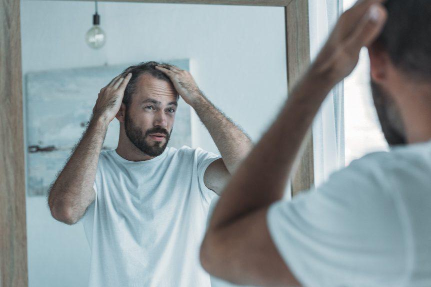 Do Hair Loss Supplements Work?