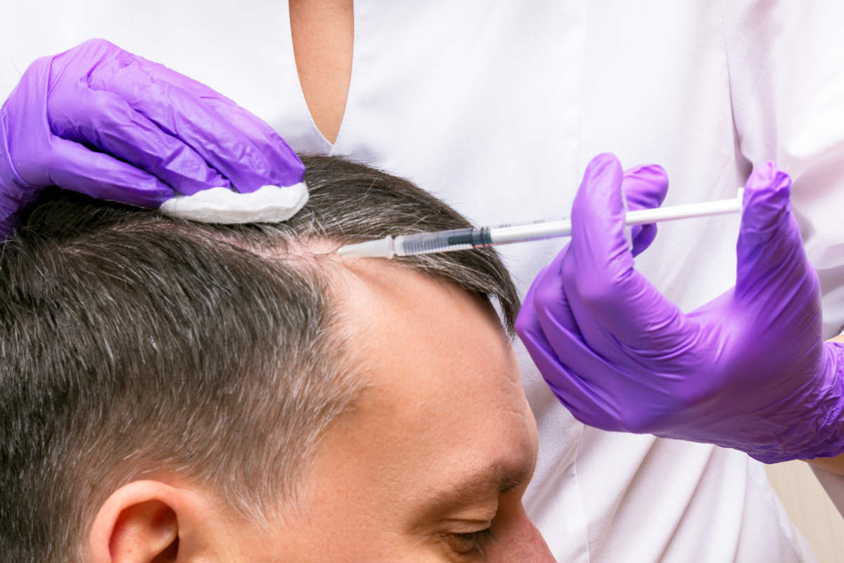 Injection, Treatment for Hair Loss | Botox For Hair Loss: Can Botox Treat Alopecia In Men? | hyaluronic acid