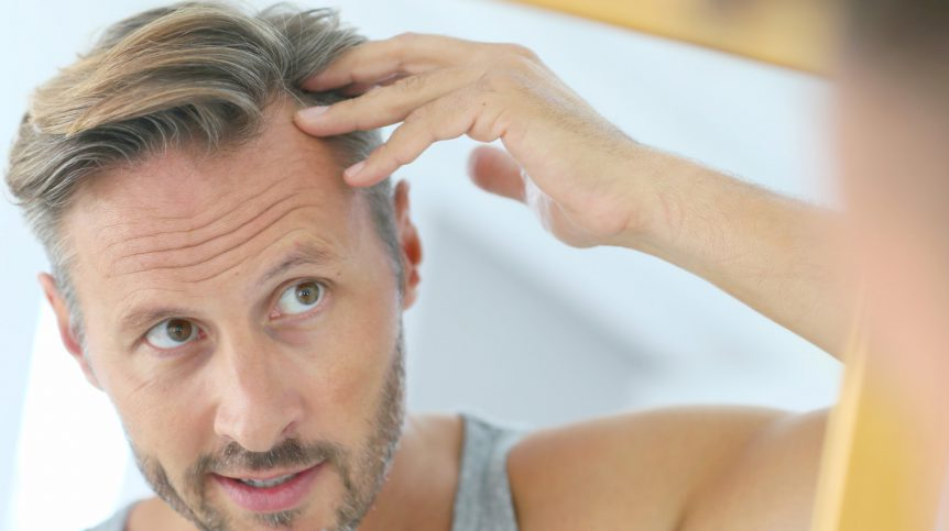 Middle-aged man concerned by hair loss | Botox For Hair Loss: Can Botox Treat Alopecia In Men? | scalp and hair | Featured